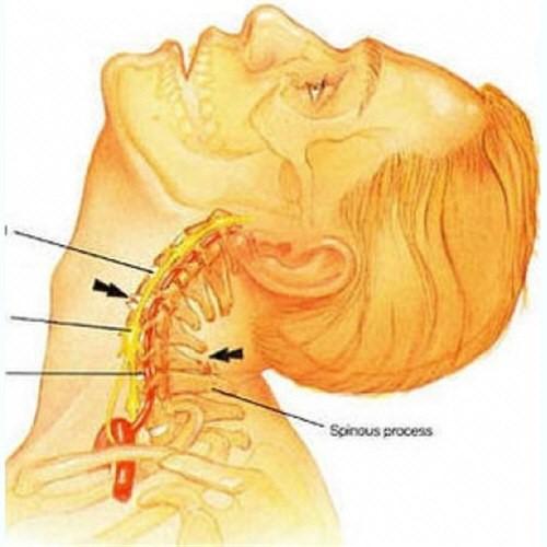 Болит поясница спина шея голова thumbnail