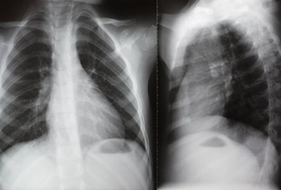 Рентген член входи