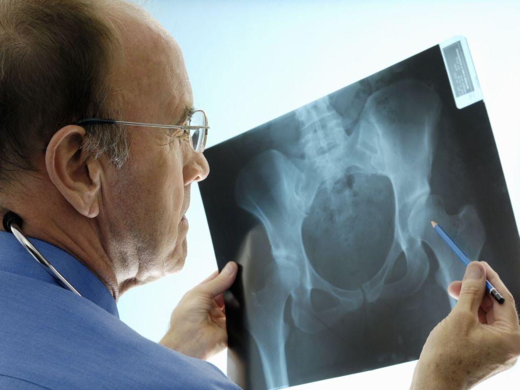 Что выевляет узи тазобедренного сустава продолжительность болничного листа при переломе локтевого сустава