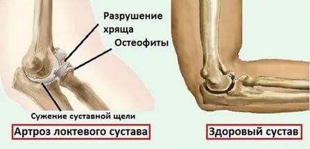 Склероз локтевого сустава болит колено - к какому врачу идти