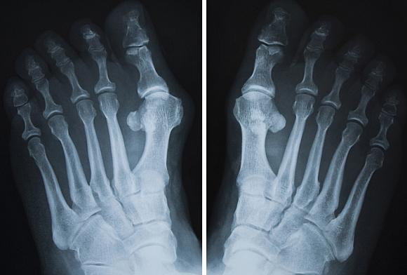Рентген перелома пальца руки thumbnail
