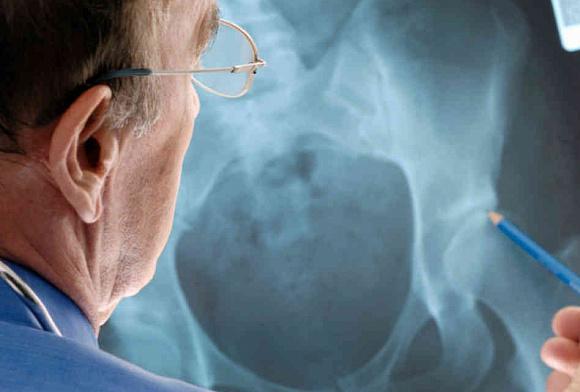 Противопоказания для рентгена костей таза thumbnail