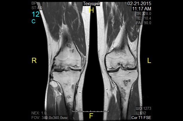 гонартроз коленного сустава лечение в санкт петербурге